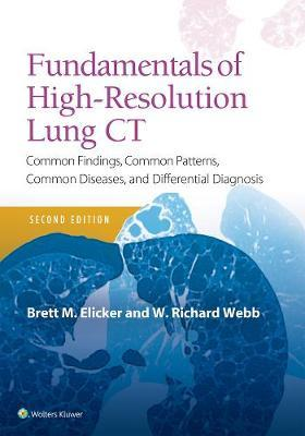 Fundamentals of High-Resolution Lung CT by Brett M. Elicker