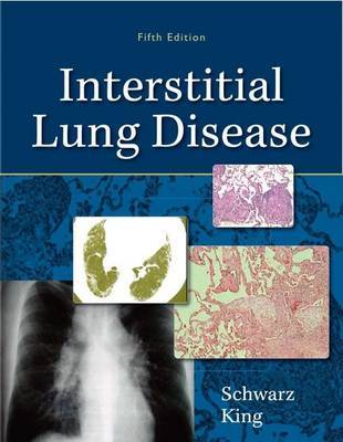 Interstitial Lung Disease by Talmadge E. King, MD., Jr.