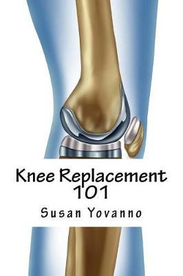 Knee Replacement 101 by Susie Yovanno