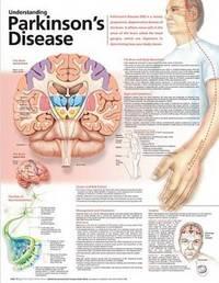 Understanding Parkinson's Disease Anatomical Chart image