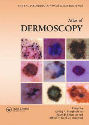 An Atlas of Dermoscopy by Alfred W. Kopf