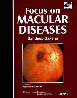 Focus on Macular Diseases image