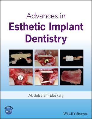 Advances in Esthetic Implant Dentistry by Abd El Salam El Askary