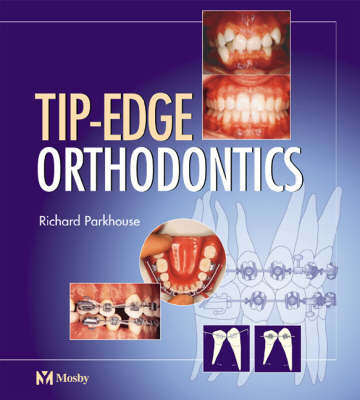 Tip-edge Orthodontics by Richard Parkhouse image
