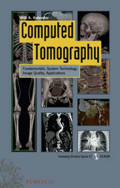 Computed Tomography: Fundamentals, System Technology, Image Quality, Applications by Willi Kalender image