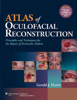 Atlas of Oculofacial Reconstruction by Gerald J. Harris