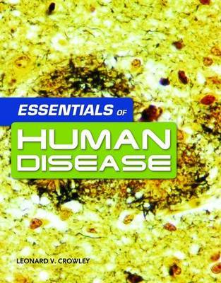 Essentials of Human Disease by Leonard V Crowley image